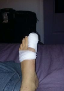 ugly foot